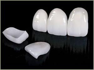 керамические виниры emax отзывы