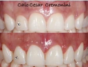 Caio Cremonini